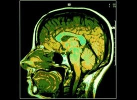 cervello green